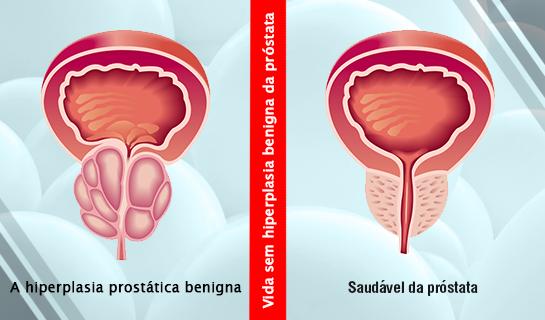 HPB – Hiperplasia Prostática Benigna – Dr. Celso