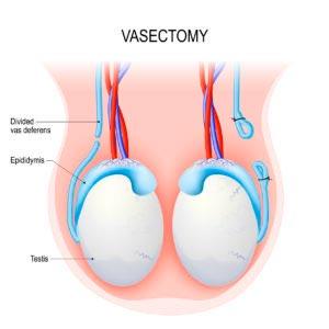 Vaso-Vasostomia / Reversão de Vasectomia